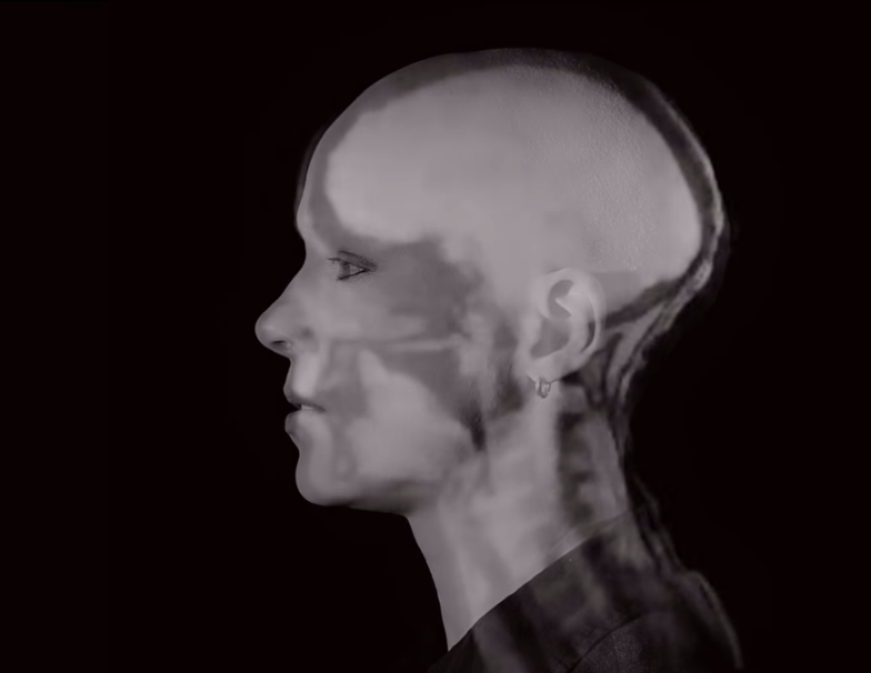 Singing Mozart in the MRI shows how overtone singers can hit two notes at once